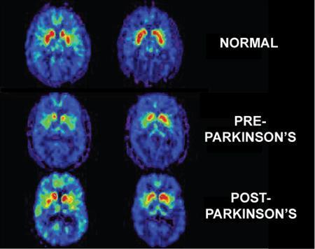 Celulele stem ar putea fi utile in tratarea sindromului Parkinson