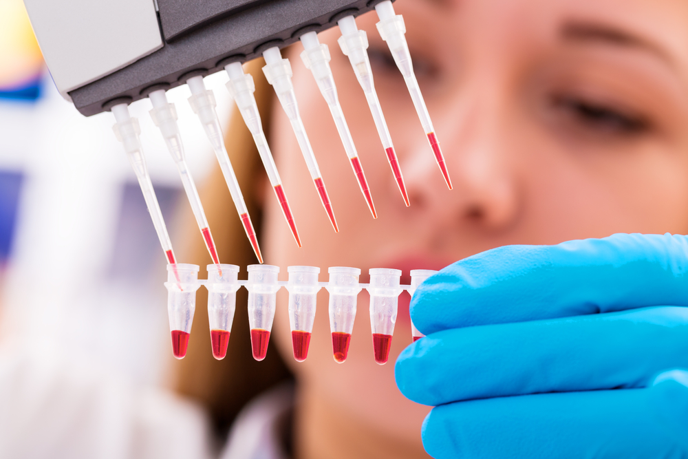 Celule stem modificate vor putea fi folosite la orice tip de transplant